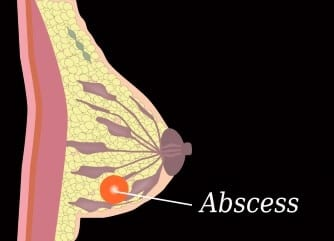 Do I have a breast abscess?